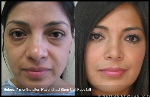 A patient before and 7 months after a stem cell facelift.
