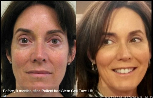 A patient's before and after a stem cell facelift photos