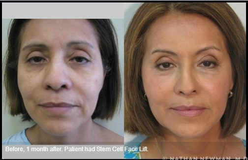 Before and One Month After a Stem Cell Facelift
