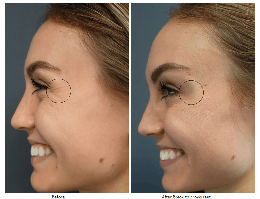 Botox Beverly Hills Injection Treatments Nathan Newman Md
