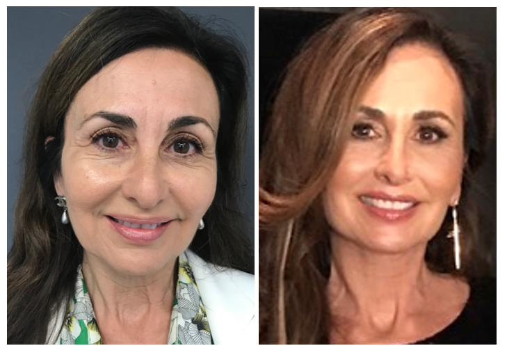 A patient before and after a stem cell facelift.
