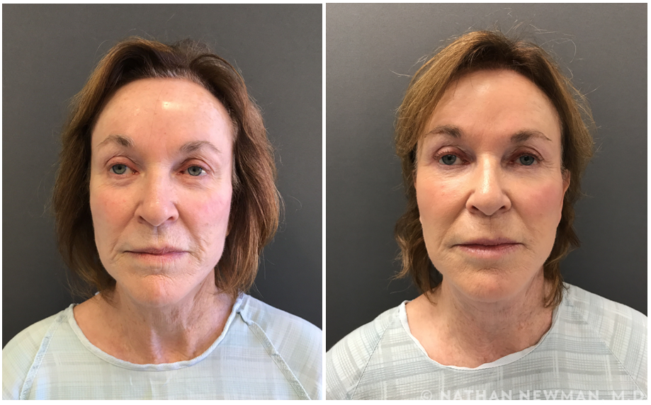 A stem cell facelift patient before and after the procedure.