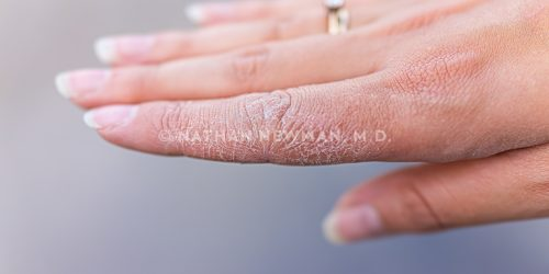 Dry cracked skin macro closeup of index finger of female young woman's hand showing eczema medical condition called dyshidrotic pompholyx or vesicular dyshidrosis